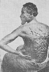 Scars on Back